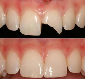 Benefits of Composite / Cosmetic Fillings